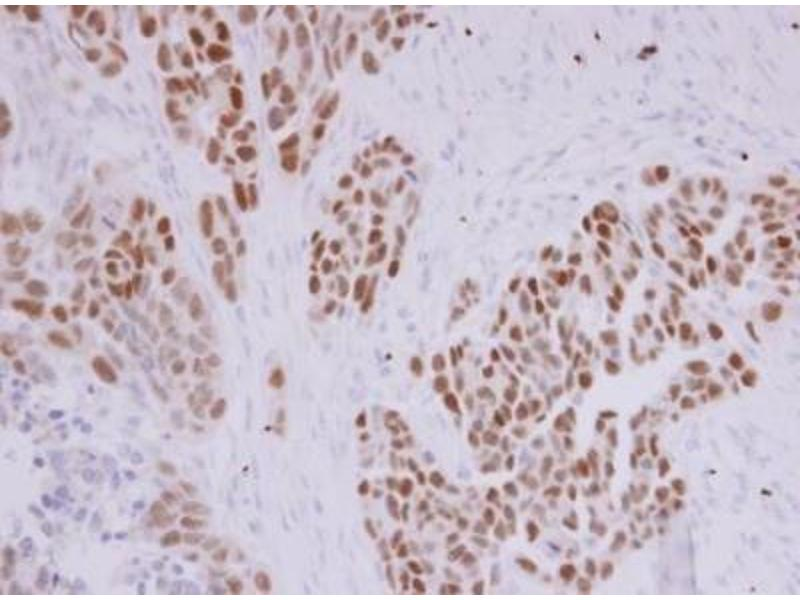 Immunohistochemistry (Paraffin-embedded Sections) (IHC (p)) image for anti-Paired Box 8 (PAX8) (Center) antibody (ABIN442408)