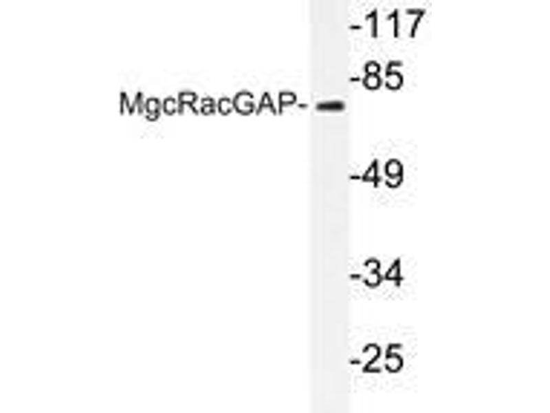 Western Blotting (WB) image for anti-Rac GTPase Activating Protein 1 (RACGAP1) antibody (ABIN498154)
