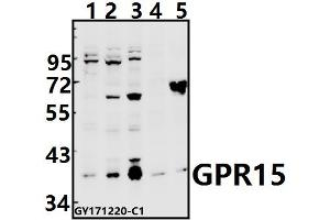Image no. 1 for anti-G Protein-Coupled Receptor 15 (GPR15) (AA 248-293) antibody (ABIN6713697)