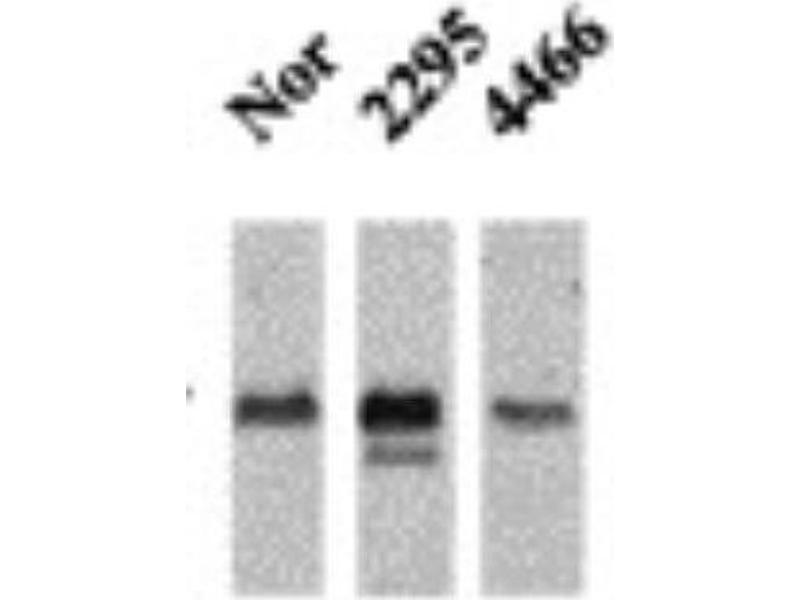 Western Blotting (WB) image for anti-CAMK2A antibody (Calcium/calmodulin-Dependent Protein Kinase II alpha) (pThr286) (ABIN451525)