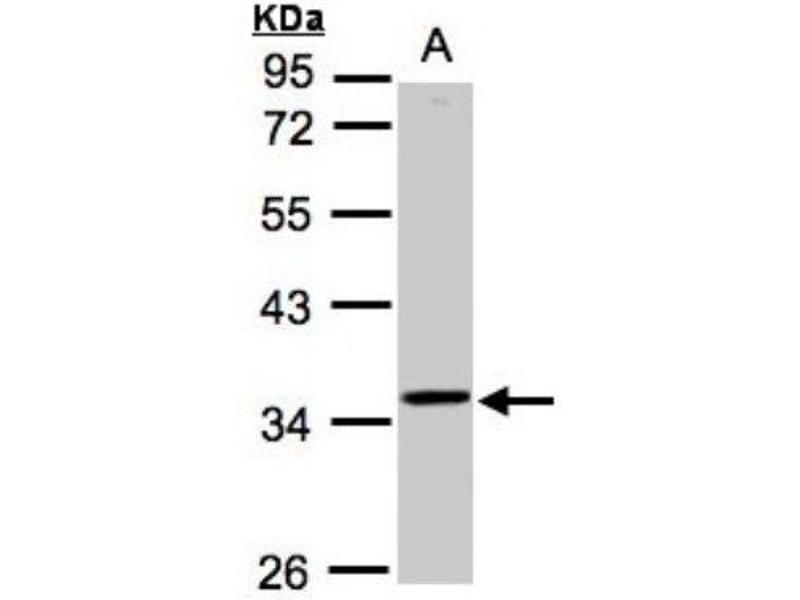 Western Blotting (WB) image for anti-RNA (Guanine-9-) Methyltransferase Domain Containing 3 (RG9MTD3) (Center) antibody (ABIN442483)
