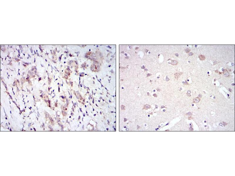Immunohistochemistry (IHC) image for anti-FYN Oncogene Related To SRC, FGR, YES (FYN) antibody (ABIN969159)