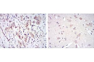 Immunohistochemistry (IHC) image for anti-FYN antibody (FYN Oncogene Related To SRC, FGR, YES) (ABIN969159)