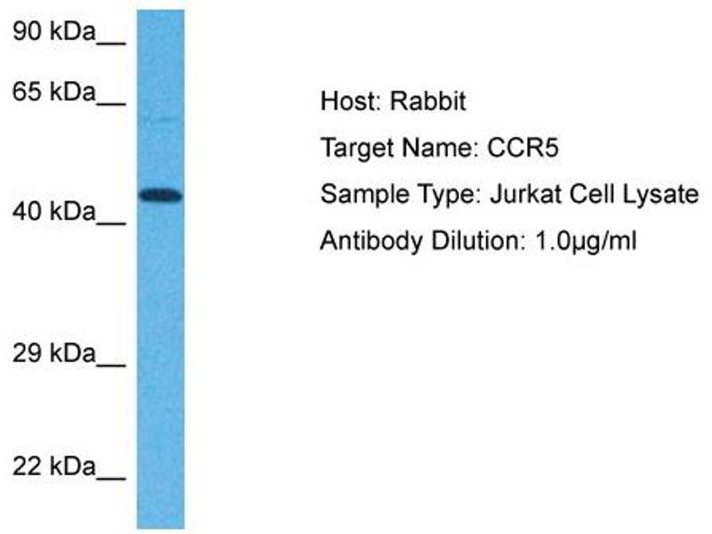 Western Blotting (WB) image for anti-C-C Chemokine Receptor Type 5 (CCR5) (Middle Region) antibody (ABIN2779385)