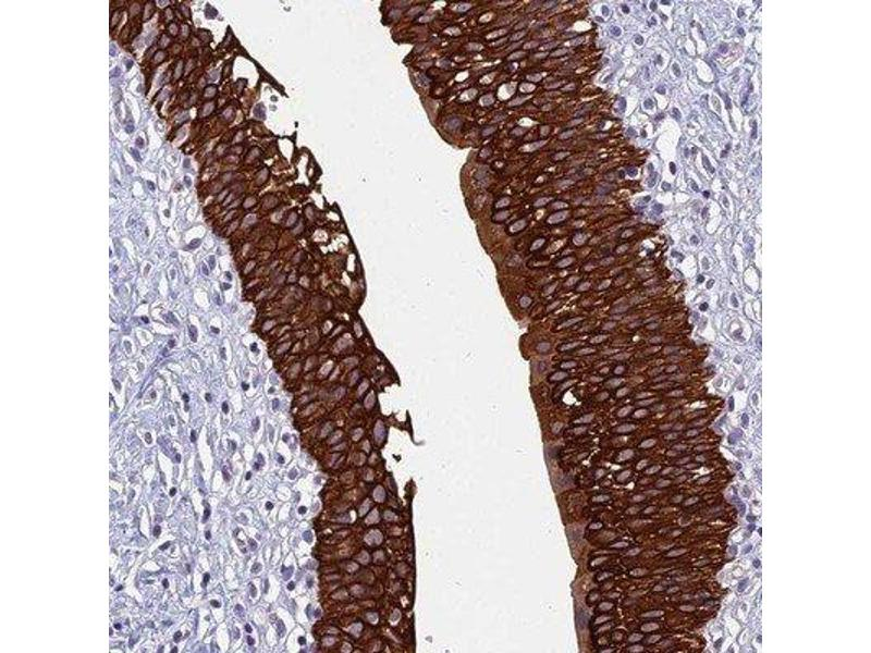 Immunohistochemistry (Paraffin-embedded Sections) (IHC (p)) image for anti-RBM41 抗体 (RNA Binding Motif Protein 41) (ABIN4349620)