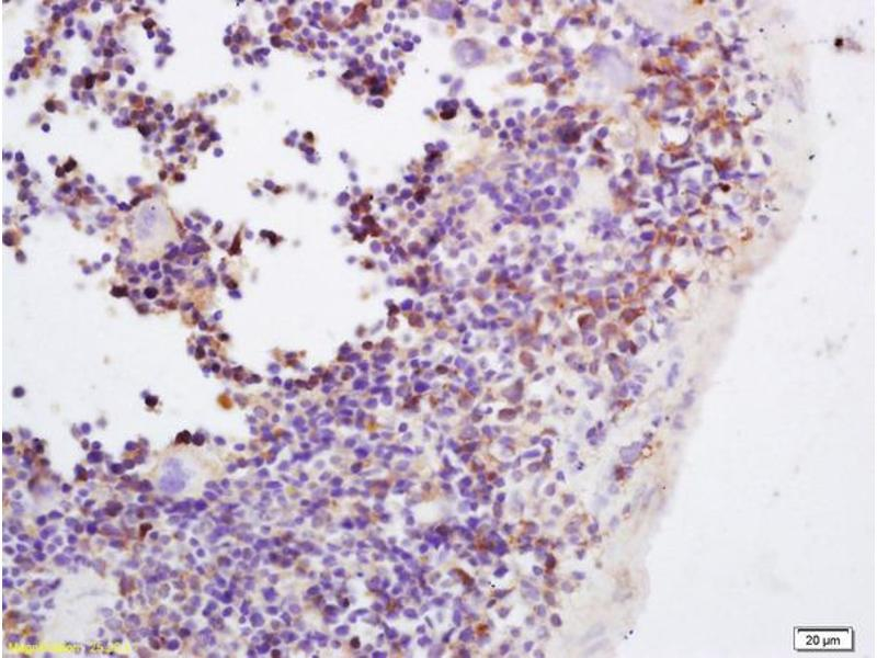 Immunohistochemistry (IHC) image for anti-JAK3 antibody (Tyrosine-Protein Kinase JAK3) (pTyr980) (ABIN742883)