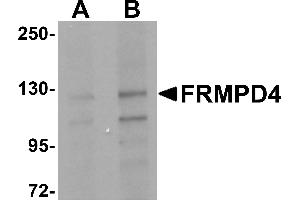 Image no. 2 for anti-FERM and PDZ Domain Containing 4 (FRMPD4) (Middle Region) antibody (ABIN1030935)