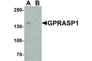 Image no. 1 for anti-G Protein-Coupled Receptor Associated Sorting Protein 1 (GPRASP1) (N-Term) antibody (ABIN6655952)