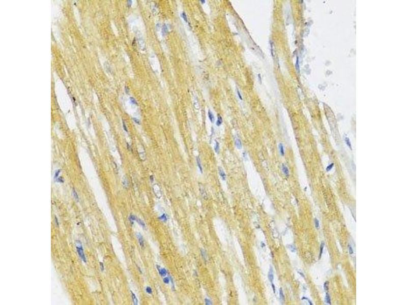 Immunohistochemistry (Paraffin-embedded Sections) (IHC (p)) image for anti-Inhibitor of kappa Light Polypeptide Gene Enhancer in B-Cells, Kinase epsilon (IKBKE) antibody (ABIN3020771)