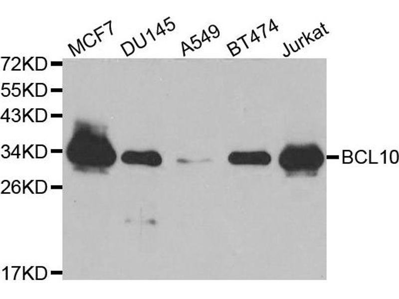Western Blotting (WB) image for anti-BCL10 antibody (B-Cell CLL/lymphoma 10) (ABIN1871246)
