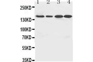 Image no. 1 for anti-rho-Associated, Coiled-Coil Containing Protein Kinase 2 (ROCK2) (AA 35-51), (N-Term) antibody (ABIN3044353)