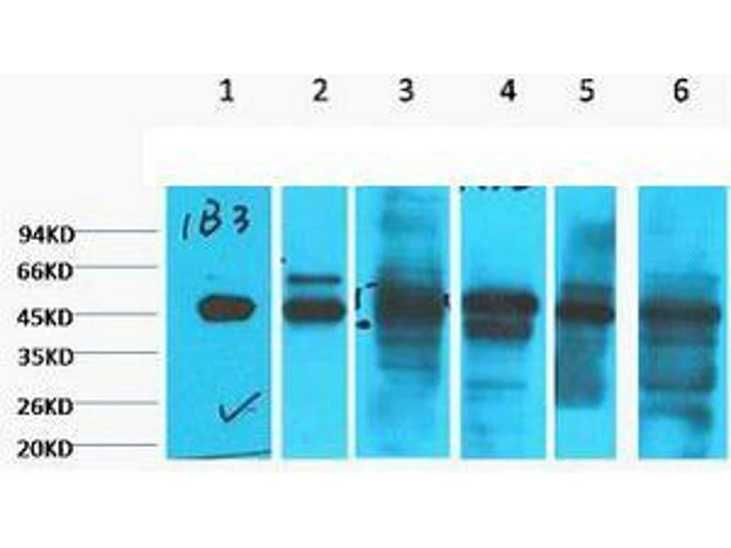 Western Blotting (WB) image for anti-Keratin 18 (KRT18) antibody (ABIN3181165)