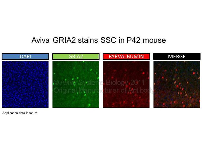 image for anti-GRIA2 antibody (Glutamate Receptor, Ionotropic, AMPA 2) (N-Term) (ABIN2792269)