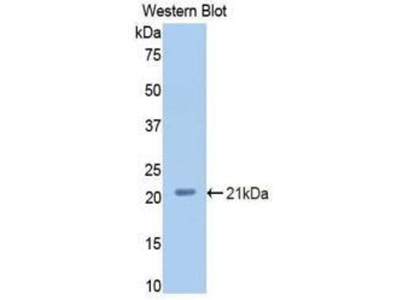 Western Blotting (WB) image for anti-Complement Factor P (CFP) (AA 54-217) antibody (ABIN1858389)