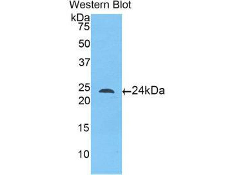 Western Blotting (WB) image for anti-Toll-Like Receptor 5 (TLR5) (AA 46-205) antibody (ABIN1175326)