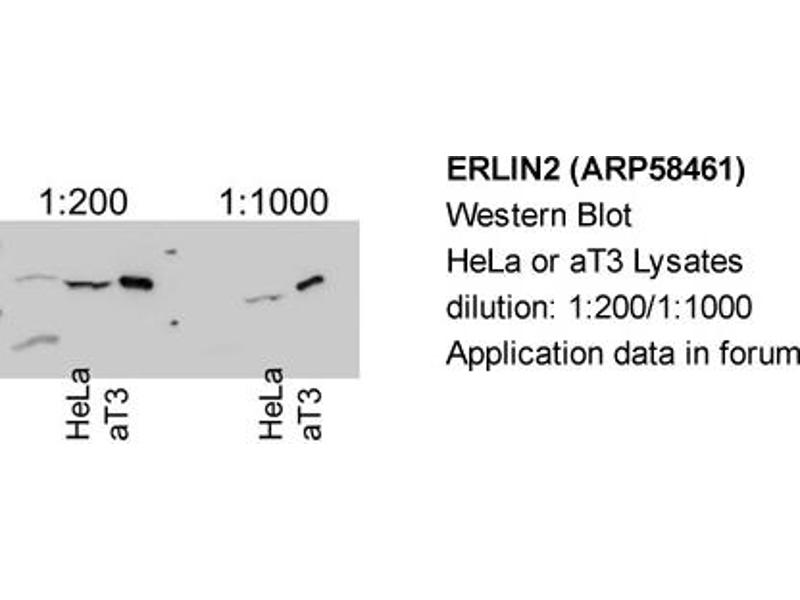 Western Blotting (WB) image for anti-ER Lipid Raft Associated 2 (ERLIN2) (Middle Region) antibody (ABIN406694)