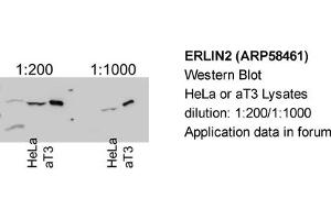 anti-ER Lipid Raft Associated 2 (ERLIN2) (Middle Region) antibody (2)