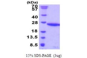 Image no. 1 for Ubiquitin-Conjugating Enzyme E2G 1 (Ube2g1) (AA 1-170) protein (His tag) (ABIN5853980)