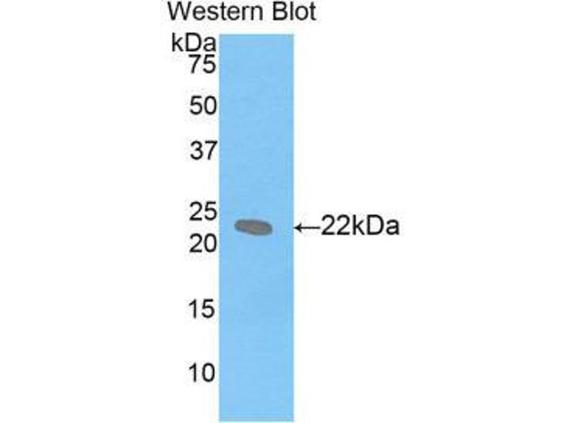 Western Blotting (WB) image for anti-Leukemia Inhibitory Factor (LIF) (AA 25-203) antibody (ABIN1859654)
