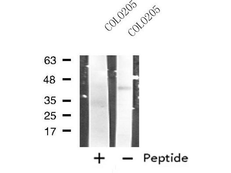 Western Blotting (WB) image for anti-Ribonucleotide Reductase M2 B (TP53 Inducible) (RRM2B) antibody (ABIN6257482)