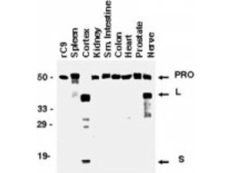 Western Blotting (WB) image for anti-Caspase 9 antibody (Caspase 9, Apoptosis-Related Cysteine Peptidase) (Proform) (ABIN4288190)