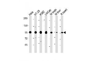 Image no. 5 for anti-SREBF chaperone (SCAP) (AA 604-632), (Center) antibody (ABIN652508)