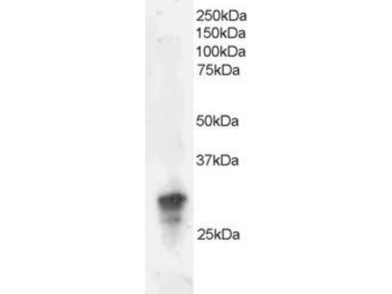 Western Blotting (WB) image for anti-GRB2 antibody (Growth Factor Receptor-Bound Protein 2) (C-Term) (ABIN184670)