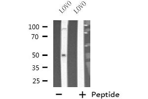 Image no. 1 for anti-Cytochrome P450, Family 3, Subfamily A, Polypeptide 7 (CYP3A7) antibody (ABIN6258076)
