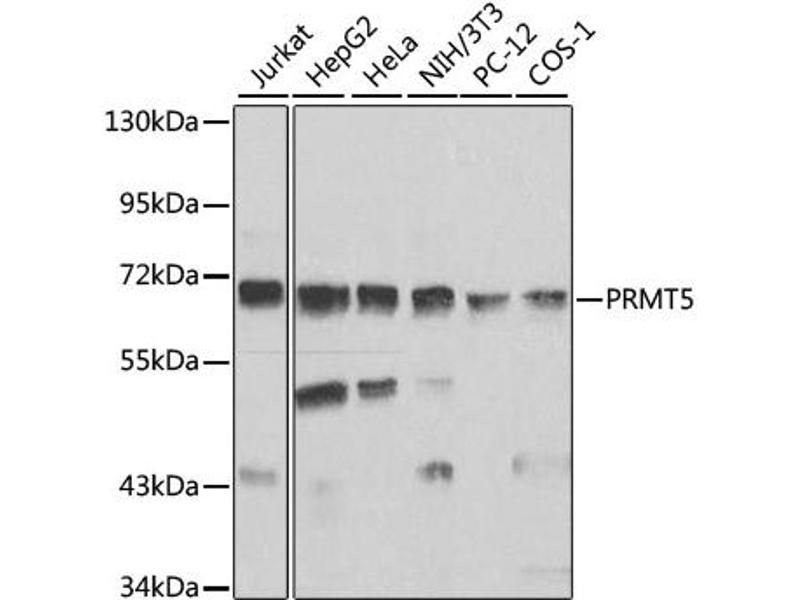 Image no. 4 for anti-Protein Arginine Methyltransferase 5 (PRMT5) antibody (ABIN6568604)