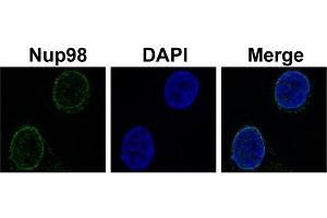 Image no. 2 for anti-Nucleoporin 98kDa (NUP98) (N-Term) antibody (ABIN2781008)