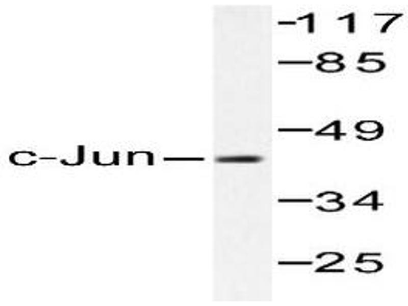 image for anti-Jun Proto-Oncogene (JUN) antibody (ABIN265356)