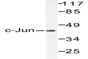 image for anti-Jun Proto-Oncogene (JUN) antibody (ABIN265356)