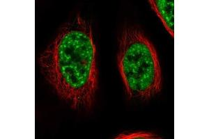 Immunofluorescence (IF) image for anti-RNA Binding Motif Protein 26 (RBM26) antibody (ABIN4349602)