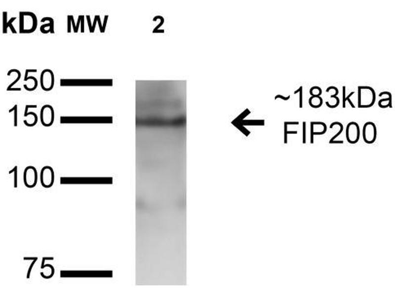 Image no. 2 for anti-RB1-Inducible Coiled-Coil 1 (RB1CC1) (AA 1355-1366) antibody (Streptavidin) (ABIN5066298)