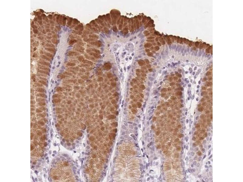 Anti-Human Trefoil Factor 1 antibody for