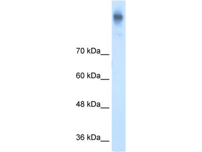 Western Blotting (WB) image for anti-Solute Carrier Family 12 (Potassium-Chloride Transporter) Member 2 (SLC12A2) (C-Term) antibody (ABIN2773831)