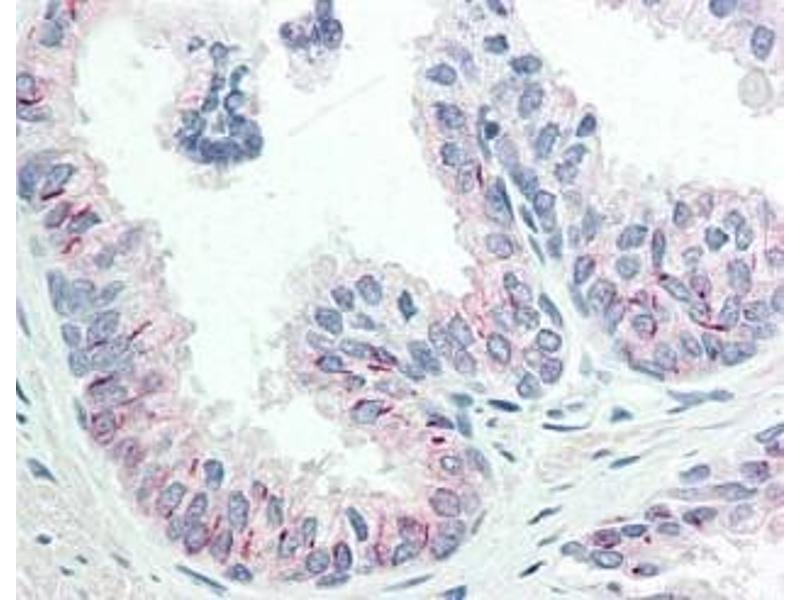 Immunohistochemistry (IHC) image for anti-AKT antibody (V-Akt Murine Thymoma Viral Oncogene Homolog 1) (Ser473) (ABIN400785)