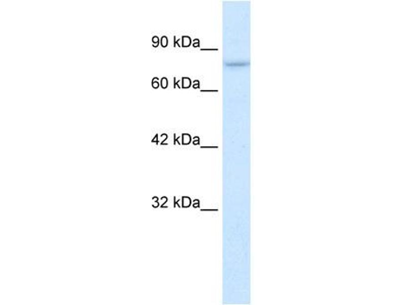 Western Blotting (WB) image for anti-Protein Inhibitor of Activated STAT, 2 (PIAS2) (C-Term) antibody (ABIN2776423)