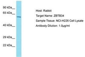 Image no. 1 for anti-Zinc Finger and BTB Domain Containing 34 (ZBTB34) (AA 108-157) antibody (ABIN6750816)