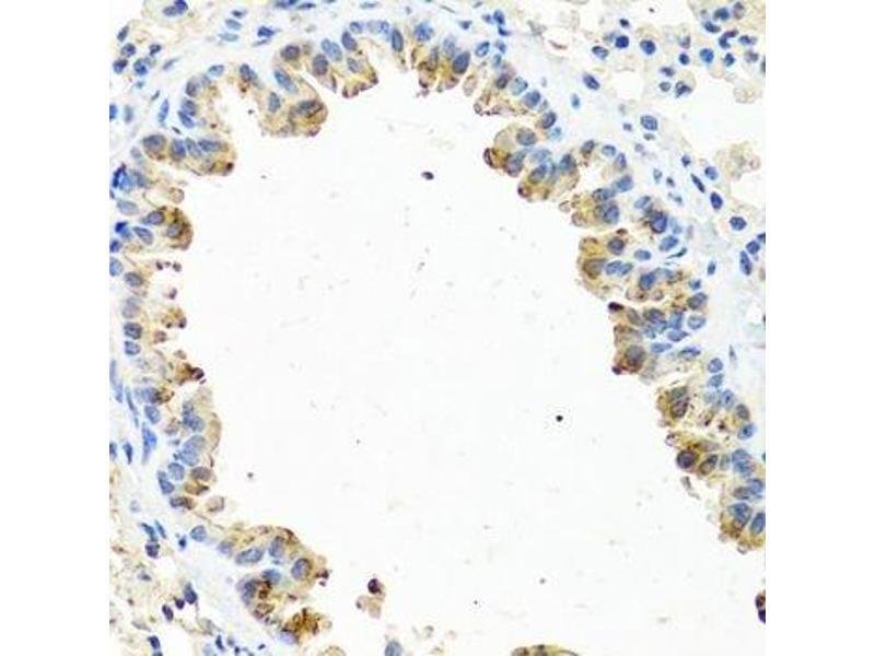 Image no. 6 for anti-Gonadotropin-Releasing Hormone 2 (GnRH2) antibody (ABIN6680865)