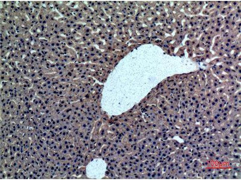 Immunohistochemistry (IHC) image for anti-Coagulation Factor II (thrombin) (F2) (Internal Region) antibody (ABIN3187675)