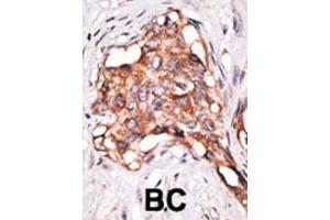 Immunohistochemistry (IHC) image for anti-Growth Differentiation Factor 3 (GDF3) (AA 21-52), (N-Term) antibody (ABIN388818)