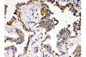 Image no. 1 for anti-ATG14 Autophagy Related 14 (ATG14) (AA 70-101), (N-Term) antibody (ABIN3043721)