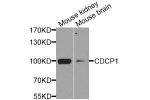 Image no. 1 for anti-CUB Domain Containing Protein 1 (CDCP1) antibody (ABIN6138276)