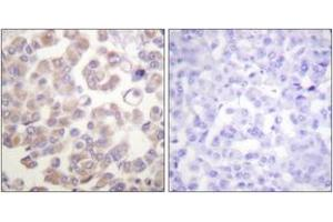 Immunohistochemistry (Paraffin-embedded Sections) (IHC (p)) image for anti-Wingless-Type MMTV Integration Site Family, Member 1 (WNT1) (AA 301-350) antibody (ABIN1533461)