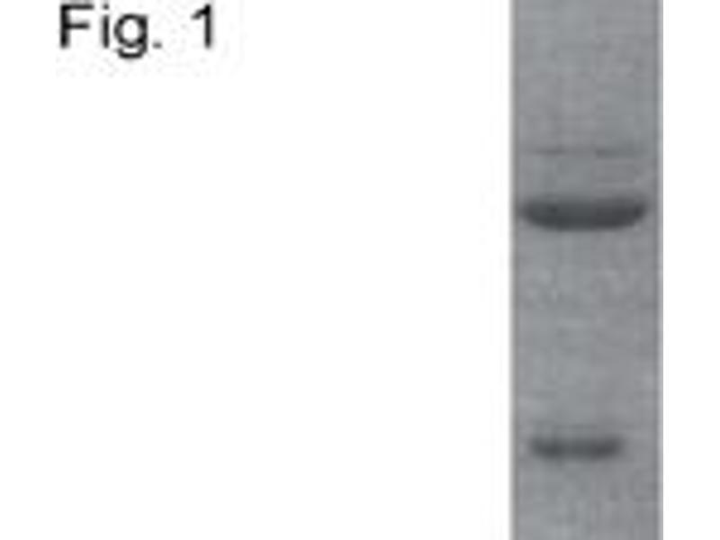 Western Blotting (WB) image for anti-Nuclear Receptor Subfamily 3, Group C, Member 2 (NR3C2) antibody (ABIN152721)