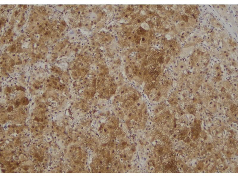 Image no. 2 for anti-Receptor (TNFRSF)-Interacting serine-threonine Kinase 1 (RIPK1) (pTyr384) antibody (ABIN6269593)