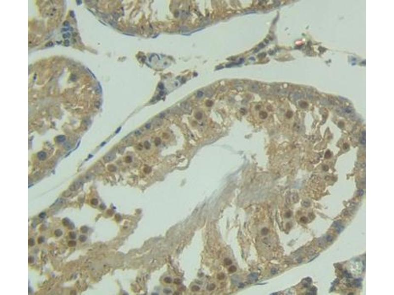 Immunohistochemistry (Paraffin-embedded Sections) (IHC (p)) image for anti-Nucleoporin 50kDa (NUP50) (AA 179-428) antibody (ABIN2917957)