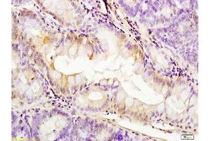 Immunohistochemistry (Paraffin-embedded Sections) (IHC (p)) image for anti-PDGFRA antibody (Platelet-Derived Growth Factor Receptor, alpha Polypeptide) (AA 1020-1070) (ABIN726620)