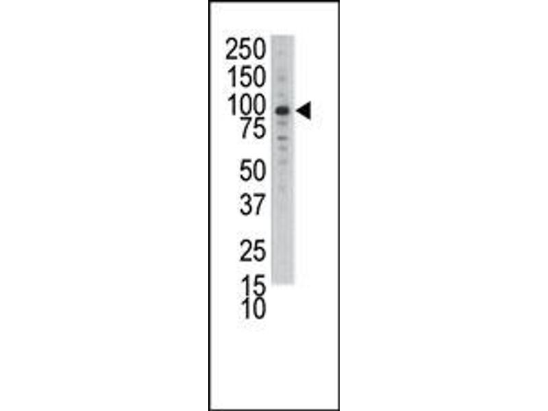 image for anti-MCK10 antibody (Discoidin Domain Receptor Family, Member 1) (N-Term) (ABIN359897)